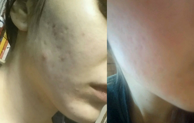 Aculift Derma Roller Before and After Acne Scars